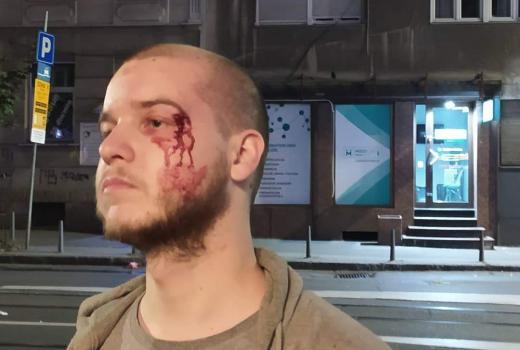Protesti u Srbiji: Novinare napadaju sa svih strana