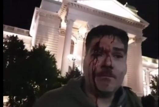 Protesti protiv Vučića: Crni dani za novinare u Srbiji